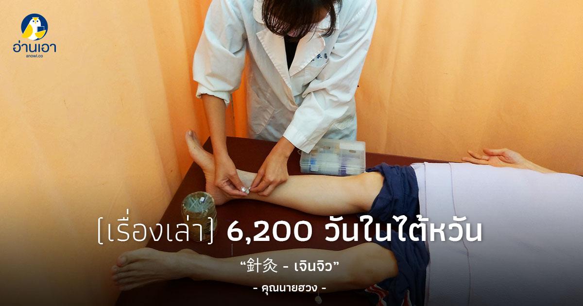 針灸 – เจินจิว