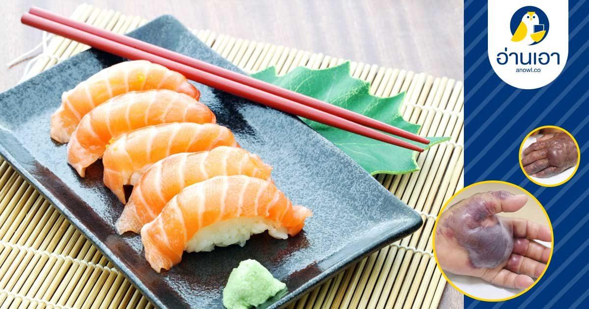 ตัดแขนเพราะกินปลาดิบ!